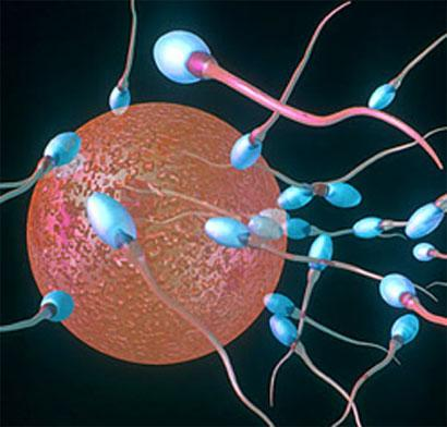 Male infertility: SwimCount Sperm Quality Test