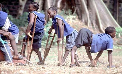 how nigeria defeated polio - vanguard news, Skeleton
