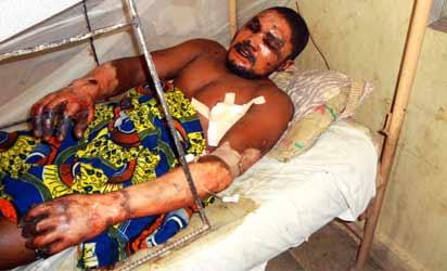 Thirty seven-year-old severely burnt Emmanuel Bassey lies in a hospital bed at Murtala Mohammed Specialist hospital in northern Nigeria's largest city of Kano on March 19, 2013. Two suicide bombers rammed their car into a bus loaded with passengers at the bus station, killing at least 22 people and injuring 65 others, the following explosions  burnt five buses. AFP PHOTO