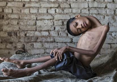 •Mahendra Ahirwar, the boy who sees upside down, before the surgery