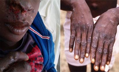 NCDC confirms 12 suspected Monkey Pox cases in Bayelsa