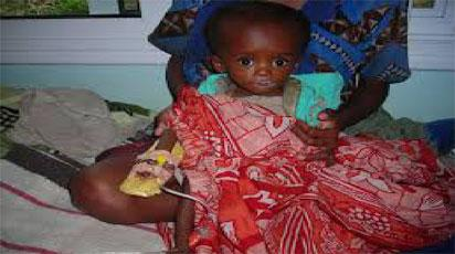Trauma of nursing Sickle Cell child