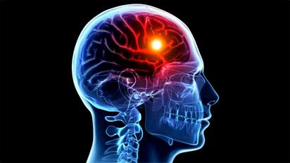 Experts worry as 200,000 Nigerians suffer stroke annually