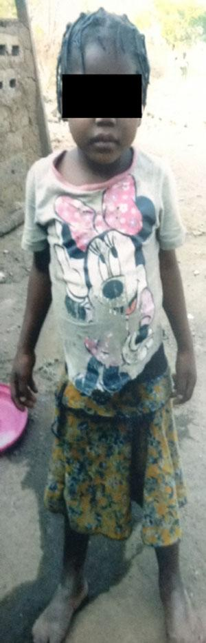 Woman inserts hot knife in 5-yr-old niece's private parts over daughter's food(Photo of victim)