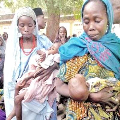 malnutrition children