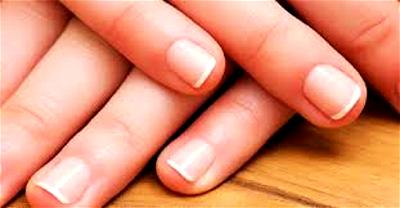 Dermatologist says strong, healthy-looking fingernails attest to person's good hygiene