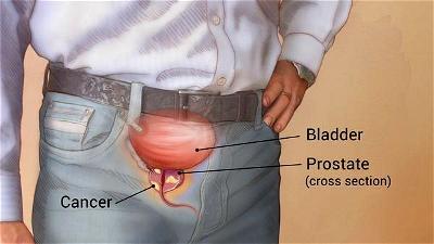Prostate Cancer in Nigeria: The way forward