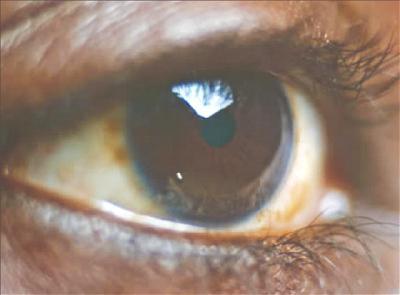 Igbos at higher risk of glaucoma blindness ― Govt Survey