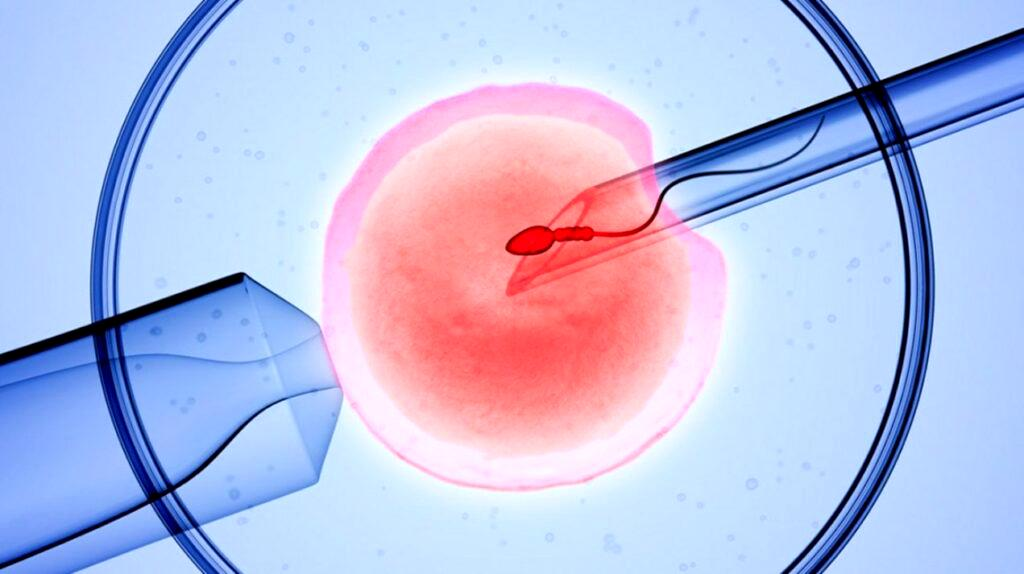 No respite for infertile couples as treatment cost skyrockets